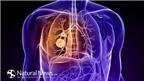 Giảm nguy cơ ung thư phổi bằng cách ăn tỏi sống