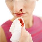 Cách cầm máu khi bị chảy máu cam mùa lạnh