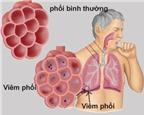 Dấu hiệu nhận biết bệnh viêm phổi