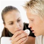 Nguyên nhân và cách xử trí khi chảy máu mũi