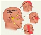 Thuốc trị đau dây thần kinh sinh ba