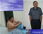 'Buộc' bụng để giảm béo