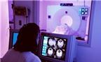 Quét não phát hiện bệnh mất trí trước 10 năm