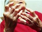 Viêm khớp dạng thấp và điều trị sinh học