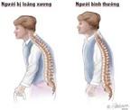 Loãng xương: Dinh dưỡng và cách điều trị