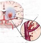 Kỹ thuật mới điều trị hiệu quả chảy máu não