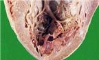 Rối loạn tim mạch do bệnh sốt rét