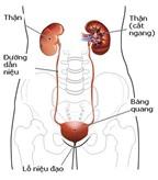 Triệu chứng nhiễm trùng thận ở phụ nữ