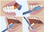Làm gì để răng trắng, miệng thơm ?
