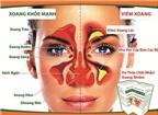 Thảo dược gia truyền trị dứt điểm viêm xoang và viêm mũi