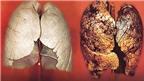 Dược thảo và món ăn hỗ trợ điều trị bệnh lao phổi