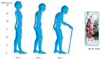 Chế độ dinh dưỡng cho người bệnh loãng xương