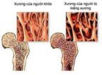 Triệu chứng thiếu canxi