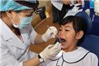 Chăm sóc răng sữa đúng cách