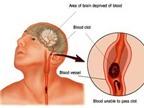 Tai biến mạch máu não: Phòng ngừa và chữa trị