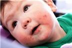 Những bệnh đường miệng hay gặp ở trẻ nhỏ